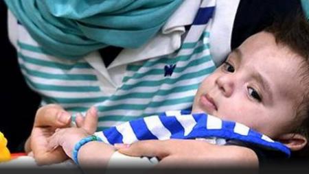 В Индии доктора успешно прооперировали малыша с 8 конечностями