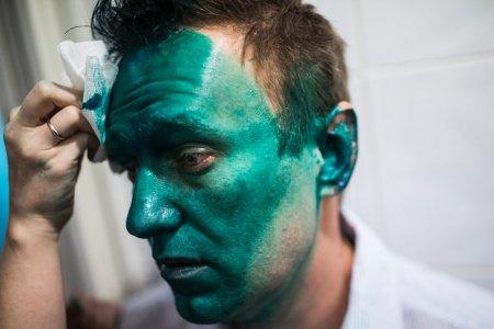 Алексея Навального госпитализировали 27 апреля после нападения с зелёнкой в Москве
