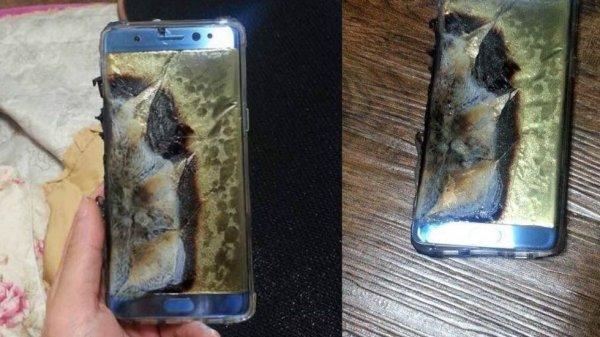 В Омске у школьницы взорвался смартфон, ребёнок попал в больницу с ожогами