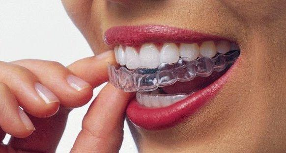 Современный метод лечения зубов