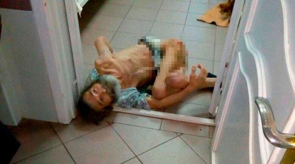 Скандал возник из-за страшного фото с пациентом клиники в Новороссийске