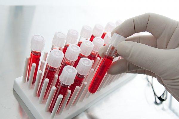 Житель Подмосковья не предупредил партнёршу и заразил её ВИЧ