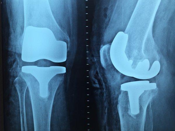 Хирурги НИИТО забыли кусок металла в колене пациента