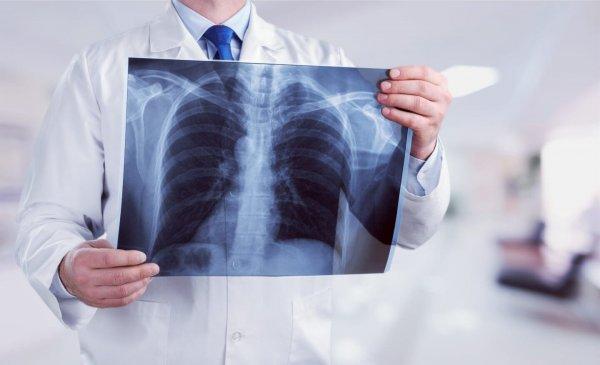 В Смоленской области в ожидании рентгена скончался пенсионер