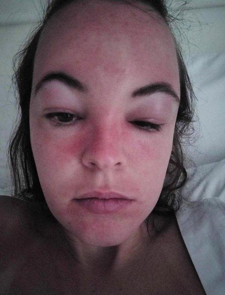 Девушка превратилась в «пришельца» после отпуска на Барбадосе