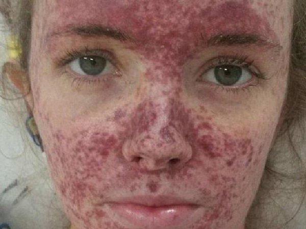 В 30 минутах от смерти: Женщина едва не умерла из-за «неправильного гриппа»