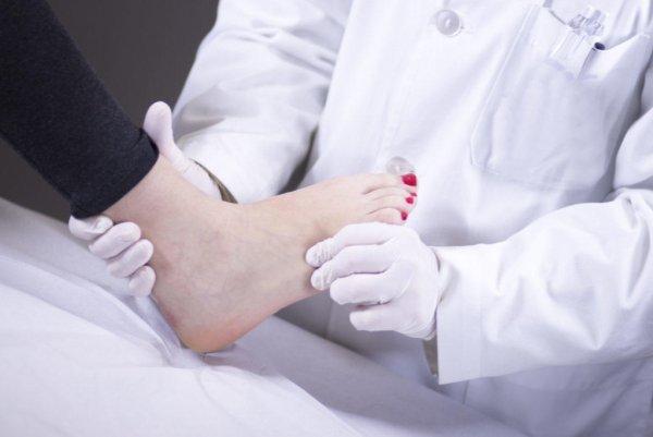 В Ростове травматолог-ортопед изуродовал девушку во время лечения плоскостопии